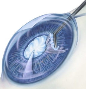 A cataract is an eye disease in which the normally clear lens of the eye becomes cloudy or opaque, causing a decrease in vision. The lens is important for focusing light onto the back of the eye (the retina) so that images appear clear and without distortion, and the clouding of this lens during cataract formation distorts our vision.